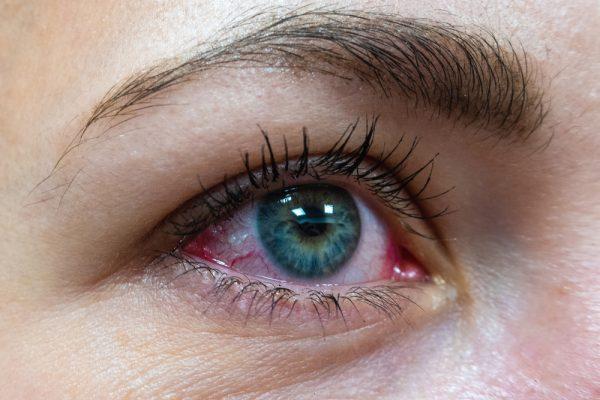 Heb jij last van tranende ogen soms?